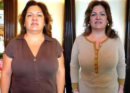 How fast will i lose weight after gastric sleeve surgery image 9